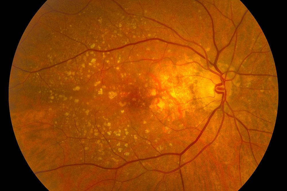 Degenerazione maculare senile blue eye clinic