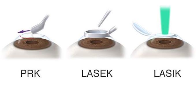 differenze tra Lasik Lasek PRK